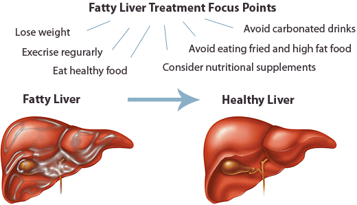 Remedies For Liver Disease